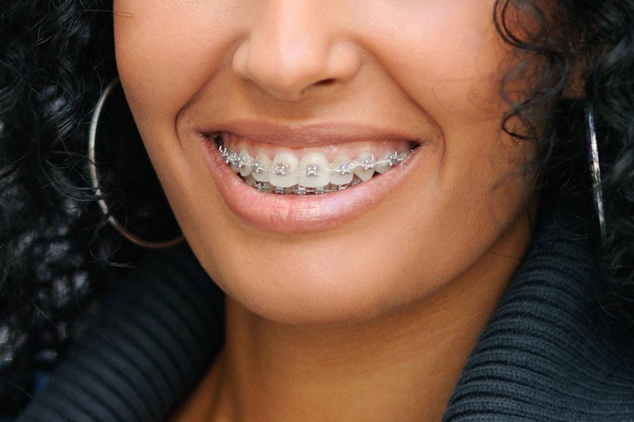 braces2